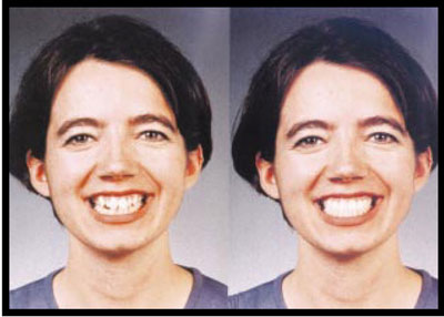 Photo of a patient before and after treatment